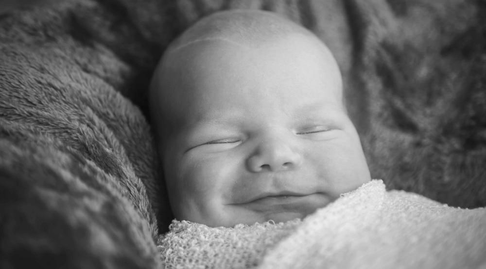 Bebé feliz con piel atópica
