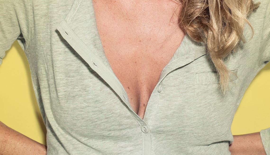 causas arrugas escote